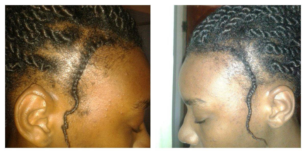 How to grow back hair edges naturally